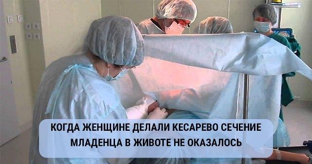 Когда беременной женщине делали кесарево сечение, младенца в животе не оказалось!