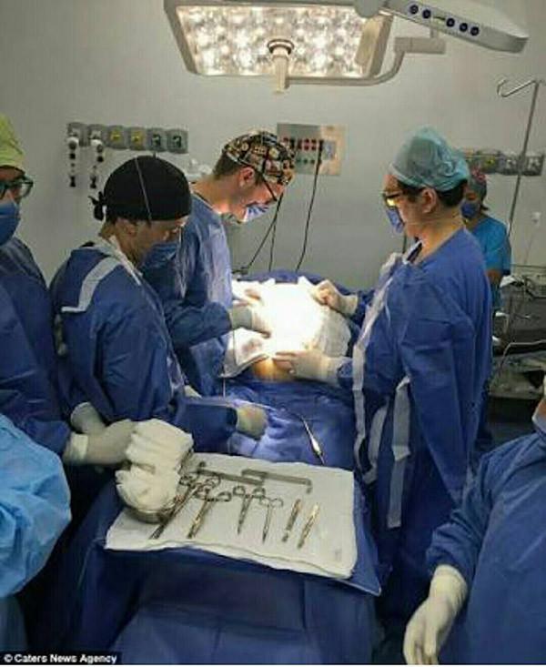 В больнице все решили, что эта женщина находится на позднем сроке беременности. Но когда врачи сделали рентген её живота...
