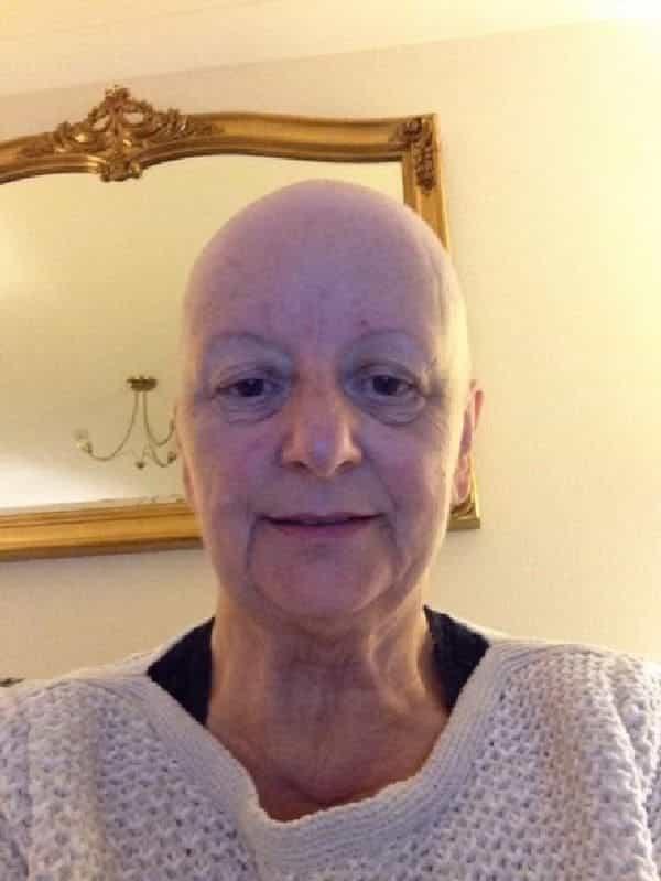 Эта 64-летняя женщина не подозревала, что происходит с ее плечом. Правда оказалась очень неожиданной