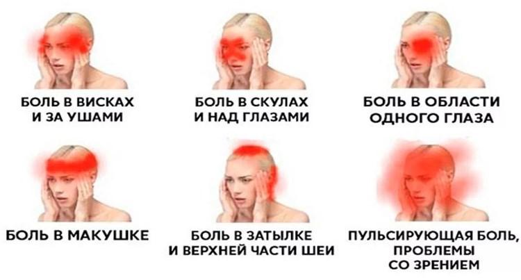О чем говорит боль в разных частях головы