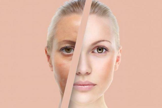 Солим лицо! Удивительное омоложение кожи