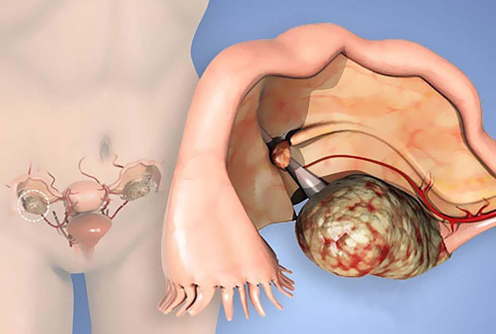 """По оценкам Американского онкологического общества, в США в предыдущем году более 22 000 женщинам поставили диагноз «рак яичников». По предварительным оценкам 14 000 из них умрут от этого заболевания, пишет CulturaColectiva. Почему эти цифры должны вас насторожить?Потому что это ″Тихая″ женская болезнь. Рак яичников часто протекает бессимптомно, поэтому его диагностируют на поздних стадиях. Ведущие онкологи утверждают, что в случае раннего обнаружения рака яичников продолжительность жизни составляет от 5 до 7 лет, если пациентка не старше 35 лет. [sc name=""""adsensead"""" ] Опасность заключается в возможном рецидиве. 1) Обнаружение рака яичников. Во время научной конференции ко Всемирному дню борьбы с раком яичников (8 мая), ученые заявили, что каждые 6 месяцев женщине нужно проходить трансвагинальное УЗИ яичников. Особенно если в ее роду были те, кто имели такое заболевание. Первые симптомы, на которые следует обратить внимание, чтобы исключить рак яичников, очень похожи на симптомы колита. Важно отметить, что этот вид рака встречается в основном у женщин в возрасте от 30 лет. Самое важное, что это новообразование никоим образом не проявляет себя на первом этапе. Его симптомы легко спутать с другими заболеваниями. 2) Симптомы рака яичников: Периодическое или постоянное вздутие живота. Запор, расстройство желудка или частые боли в животе могут быть предупреждающим сигналом. Интенсивная и постоянная боль в области таза — один из главных симптомов. Боль в нижней части спины. Неконтролируемое мочеиспускание, боль и / или жжение при мочеиспускании. Стремительная потеря веса. Постоянное чувство усталости. Боль во время полового акта. Если вы обнаружили у себя эти симптомы, немедленно обратитесь к врачу, пройдите УЗИ яичников. Внимательно следите за своим здоровьем, регулярно посещайте врача, исследуйте состояние своего организма с помощью различных методов диагностики. Тогда вам не придется столкнуться с самым опасным женским заболеванием."""