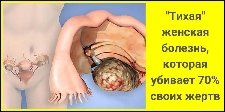 ″Тихая″ женская болезнь, которая убивает 70% своих жертв