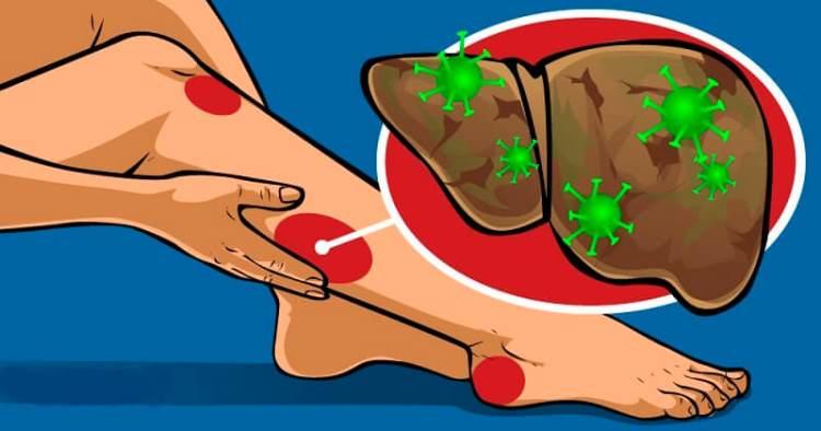Девять признаков того, что Ваша печень переполнена токсинами