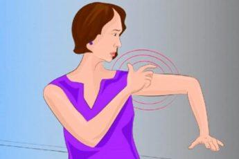 8 симптомов инсульта, о которых особенно должны знать женщины