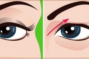 Как приподнять нависшее веко и убрать отеки с глаз