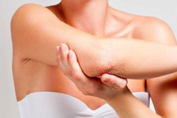 Сухая кожа на локтях: причины, что делать, простые рецепты для ухода за кожей