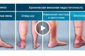 Это Более Эффективно Чем Операции! Лечение Варикозного Расширения Вен!