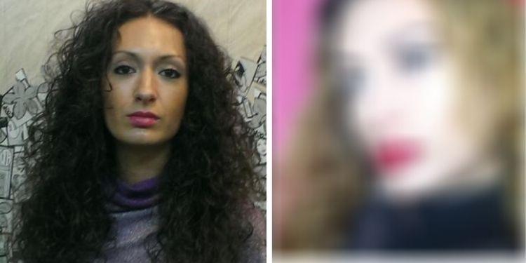 Как выглядит 31-летняя украинка, которая перекачала себе скулы