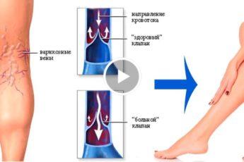 11 натуральных способов лечения варикоза!