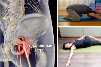 8 упражнений, с которыми Вы навсегда забудете о радикулите и болях в спине