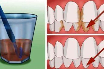 Лучшее средство для удаления зубного камня и отбеливания зубов
