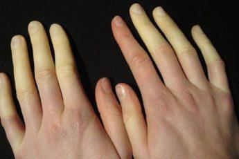 Синдром Рейно — что делать, если у Вас холодные руки и холодные ноги!