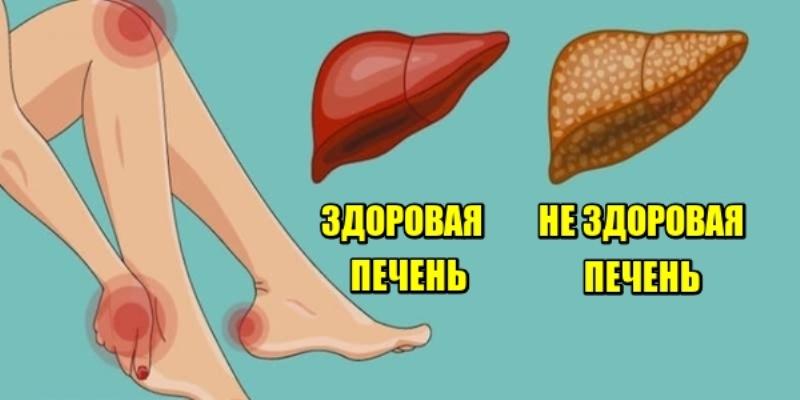 Вот как ваше тело демонстрирует что ваша печень в опасности