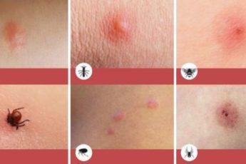 ВАЖНО! 8 типов укусов насекомых, о которых вы просто обязаны знать!