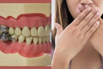 Передовое средство для похудения. Рот просто не открывается для еды